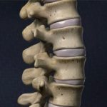 Bulging Disc Treatment: Preventing a Herniated Disc